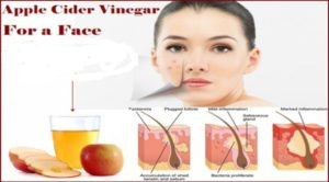 use Apple cider vinegar for acne