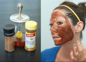 use Cinnamon powder for acne