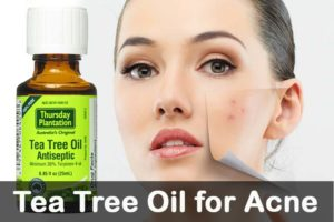 use tea tree oil for acne