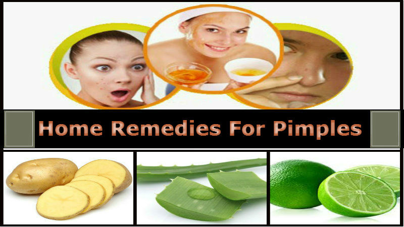 5 Home Remedies For Acne That Work