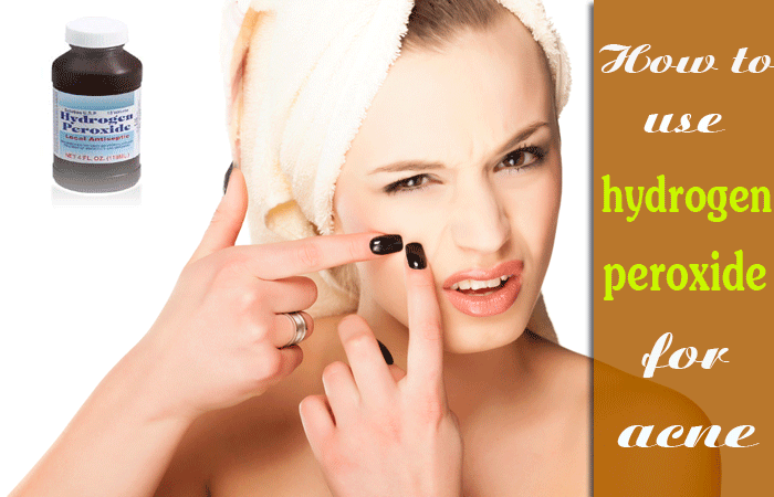 How-to-use-hydrogen-peroxide-for-acne