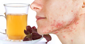 basil tea for acne